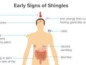 أعراض الجدرى المائى المبكرة أهمها الصداع والحمى