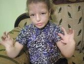مأساة طفلة من ذوى الإعاقة بالغربية ووالدها يناشد بإجراء جراحة لها
