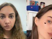"""رغم الحظر.. """"فلاتر"""" عمليات التجميل مازالت موجود على تطبيق انستجرام"""