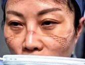 صور.. تقرحات الوجه ضريبة مكافحة فيروس كورونا للفريق الطبى بالصين