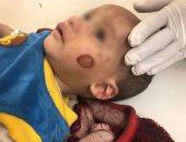انتقامًا من زوجته.. سائق يُعذب رضيع ويحرق جسده فى الإسماعيلية (صور)