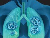 متى يحتاج المريض عملية زراعة الرئة؟.. الأطباء يجعلونها الخيار الأخير