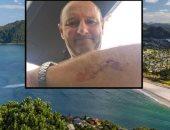 خناقة مع قرش..راكب أمواج يصارع سمكة قرش بنيوزيلندا وينجو بأعجوبة.. صور