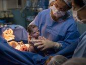 """""""صورة بمليون جنيه"""".. طفلة تنظر بوجه غاضب لممرضة بعد ولادتها فى البرازيل"""