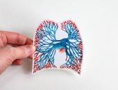 مرضى الانسداد الرئوي المزمن أكثر عرضة لسرطان الرئة حتى مع عدم التدخين
