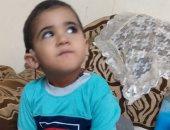 مأساة طفل من الغربية يحتاج 10 آلاف جنيه لتركيب جزء من السماعة الخارجية