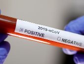 غش فى زمن الكورونا..الصحة العالمية تحذر من اختبارات مغشوشة للكشف عن الفيروس