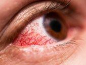 طبيب أمريكى يحذر: احمرار العين علامة مبكرة على إصابتك بكورونا
