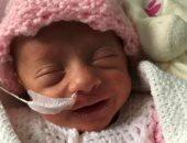 قصة تعافى طفلة مبتسرة أصغر المتعافين من فيروس كورونا.. صور