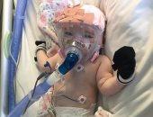 فيديو.. طفلة 6 شهور تتعافى من كورونا رغم مشاكل القلب والرئة السابقة