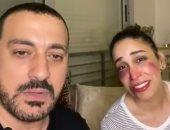 بفيديو ساخر وكدمات بالوجه.. دياب يستعين بزوجته للرد على دوره فى فرصة تانية