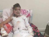 مواطن يناشد وزارة الصحة توفير عناية حروق لنجله بعد انفجار تنك بنزين بجواره