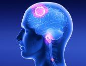 هل تؤثر الأورام السرطانية فى المخ على تصرفات وشخصية المريض؟