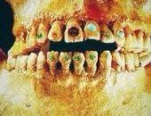 دراسة الحمض النووى للأسنان تكشف: الإنسان عانى من الطاعون قبل 5 آلاف سنة