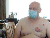 """صورة.. رجل يهاجم مُعاق """"بعضة عنيفة"""" فى صدره بسبب الكمامة ببلجيكا"""