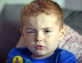 طفل أسكتلندى مهدد بفقدان بصره بسبب معقم اليدين.. والدته تروى التفاصيل.. صور
