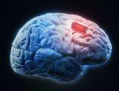 إزاى تحافظ على صحة دماغك وتحميها من الأمراض