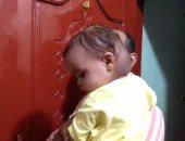 """""""مكة"""" أصيبت بورم نادر وتحتاج 16 ألف جنيه لعمل جلسات ليزر والأم مديونة بـ 8 آلاف"""