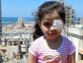 قصة طفلة سورية فقدت عينيها في انفجار بيروت بعد احتفالها بعيد ميلادها السادس