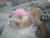 """صور.. الطفلة """"مليكه"""" تحتاج لعلاج بـ4 ملايين جنيه لإنقاذها من الموت"""