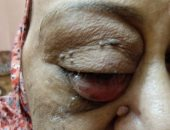 قارئة تناشد وزارة الصحة لإجراء جراحة إزالة ورم من عينها اليمنى