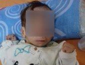 أب من كفر الشيخ يناشد الصحة علاج ابنته الرضيعة من كيس كبير يخرج من المخ