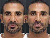 """أحمد سعد يعلق على عملية تجميل نحت وجهه: """"أنا معملتش حاجة"""".. فيديو"""