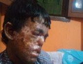 شقيقان بالإسكندرية يعانيان من مرض جلدى نادر تسبب في معاناتهما بمشاكل في العينين