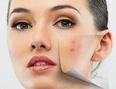 وصفات طبيعية لعلاج حب الشباب.. 4 طرق للحصول على بشرة نقية