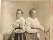 ميلى وكريستين أشهر توأم ملتصق فى القرن الـ 19.. من العبودية لـ الشهرة