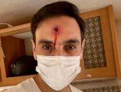 أحمد الشامى يداعب متابعيه بصورة رصاصة تخترق رأسه