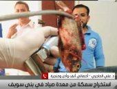 لقطة اليوم.. طبيب بنى سويف يكشف كواليس استخراج سمكة حية من فم صياد