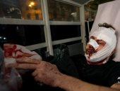 """""""فرانس برس"""" تطالب بتحقيق حول إصابة مصور سورى أثناء احتجاجات فرنسا.. صور"""