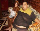 """مريض سمنة مفرطة يكشف لـ""""رأى عام"""" تفاصيل فقده 80 كيلو من وزنه بعد علاج على نفقة الدولة"""