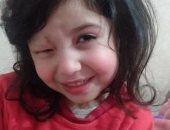 قارئ يناشد وزارة الصحة لانقاذ طفلته من وحمة دموية فى العين.. والصحة ترد
