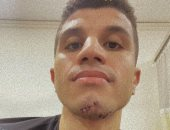 الصور الأولى للاعب الزمالك محمد عبد الغنى بعد تعرضه لإصابة فى الفك.. صور