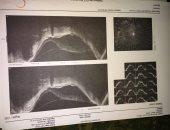 قارئ يناشد علاجه من انفصال شبكية العين.. ومحافظ القليوبية يستجيب
