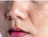 5 أمراض جلدية قد تتعرض لها بسبب الحر.. إزاى تحمى نفسك منها؟