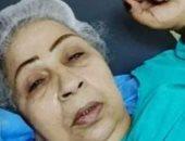 طبيب فاطمة كشرى يكشف سبب تدهور حالتها الصحية وحقيقة الشاش المتروك فى بطنها