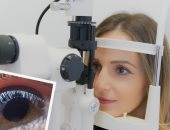 5 نصائح أساسية للوقاية من إعتام عدسة العين.. أبرزها تجنب الأشعة فوق البنفسجية