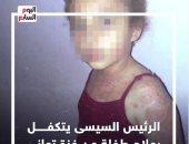 الرئيس السيسى يتكفل بعلاج طفلة من غزة تعانى مرضا جلديا خطيرا.. فيديو
