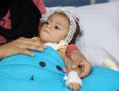 شاهد لحظة حقن ثانى طفلة بالعلاج الجينى بمركز الضمور العضلى بمعهد ناصر