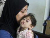 الطفلة مودة ولدت مصابة بضمور فى المخ وثقب بالقلب.. وأسرتها تناشد لعلاجها