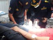 «طوارئ طنطا الجامعى» تنقذ يد شاب من البتر بعد انزلاق كفه فى المفرمة