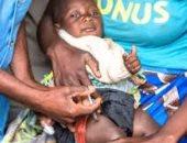 الصحة العالمية: 800 ألف طفل أفريقى معرضين للخطر حصلوا على لقاح الملاريا