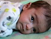 أعراض فقر الدم عند الأطفال أهمها تأخر المشى والحبو والكلام