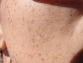 انتبهى.. أضرار لا تعرفينها عن كريمات إزالة الشعر.. حرق البشرة أبرزها
