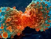 اكتشاف أجسام مضادة قادرة على محاربة السرطان