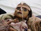بعد عام من الحرب.. الجوع ينهش اليمن ويهدد حياة مئات الآلاف من الأطفال