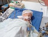 روسيا ترسل أخصائيى صحة لمصر لمتابعة حالة رضيعة أصيبت بفشل كلوى